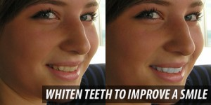 photoshop_whiten_teeth_to_improve_a_smile_in_photoshop_cs4